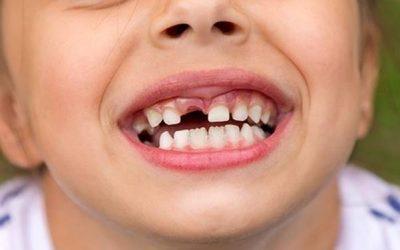 5 mối đe doạ nếu không thay thế răng mất