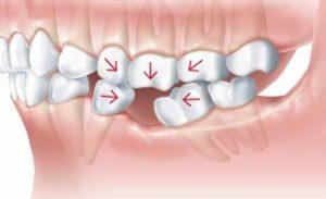 Các nguyên nhân sâu xa cần thay thế răng mất bên cạnh chức năng ăn nhai và thẩm mỹ
